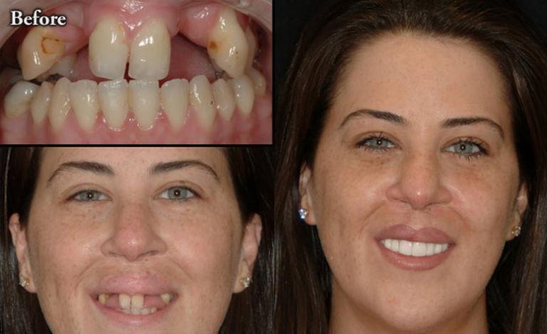 Veneers-or-Dentures